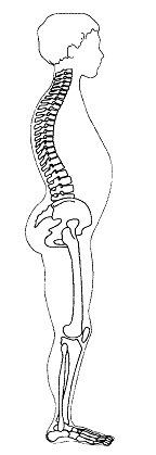 Figura 3. Retrazione della catena statica anteriore. Ateggiamento in chiusura